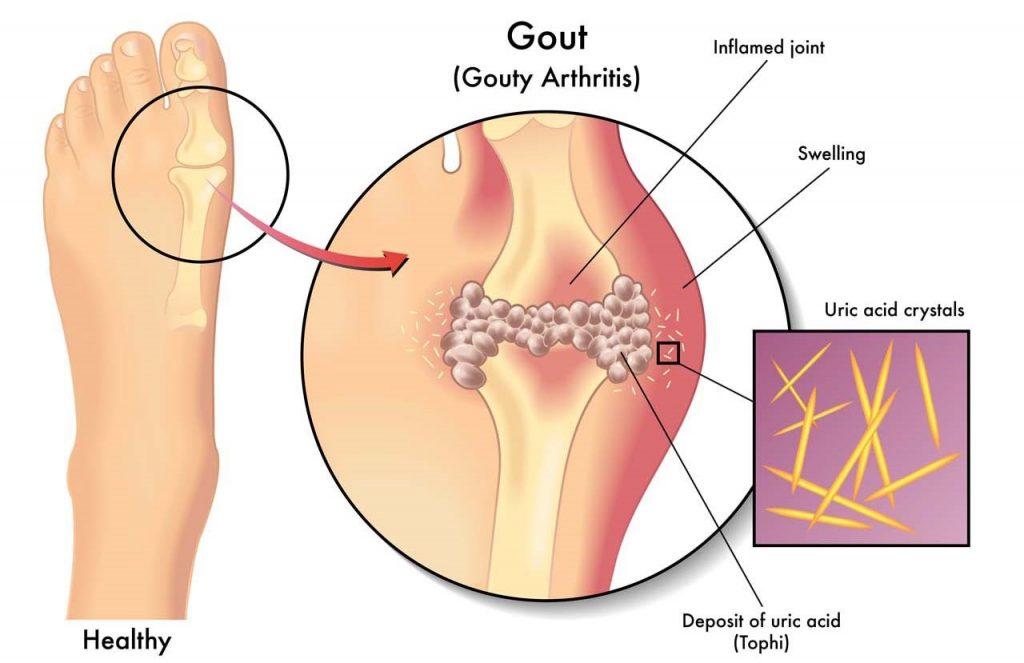 Uống rượu là nguyên nhân dẫn đến bệnh gout