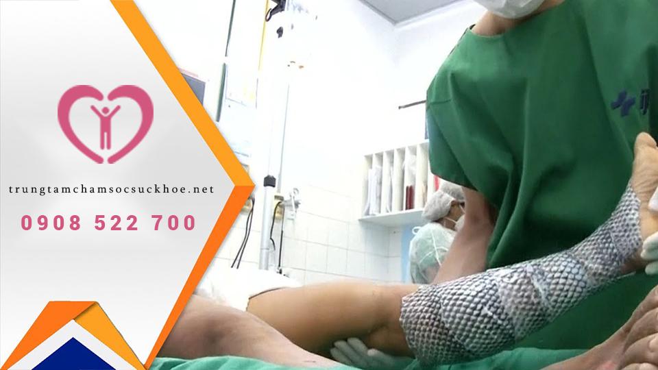 điều trị bỏng da bằng phương pháp da cá rô phi (nguồn:internet)