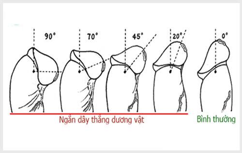 Tiểu phẫu dây hãm dương vật giúp cho dương vật trở lại hình dáng bình thường