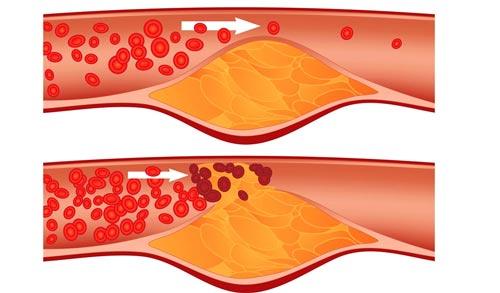 Dấu hiệu bệnh cholesterol
