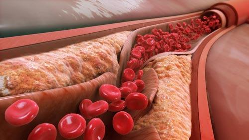 cholesterol tăng cao rất nguy hiểm