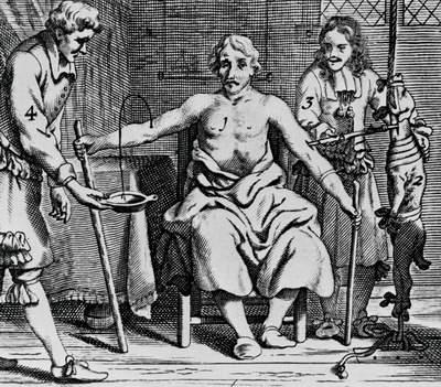 truyền máu được sử dụng ở thời xưa