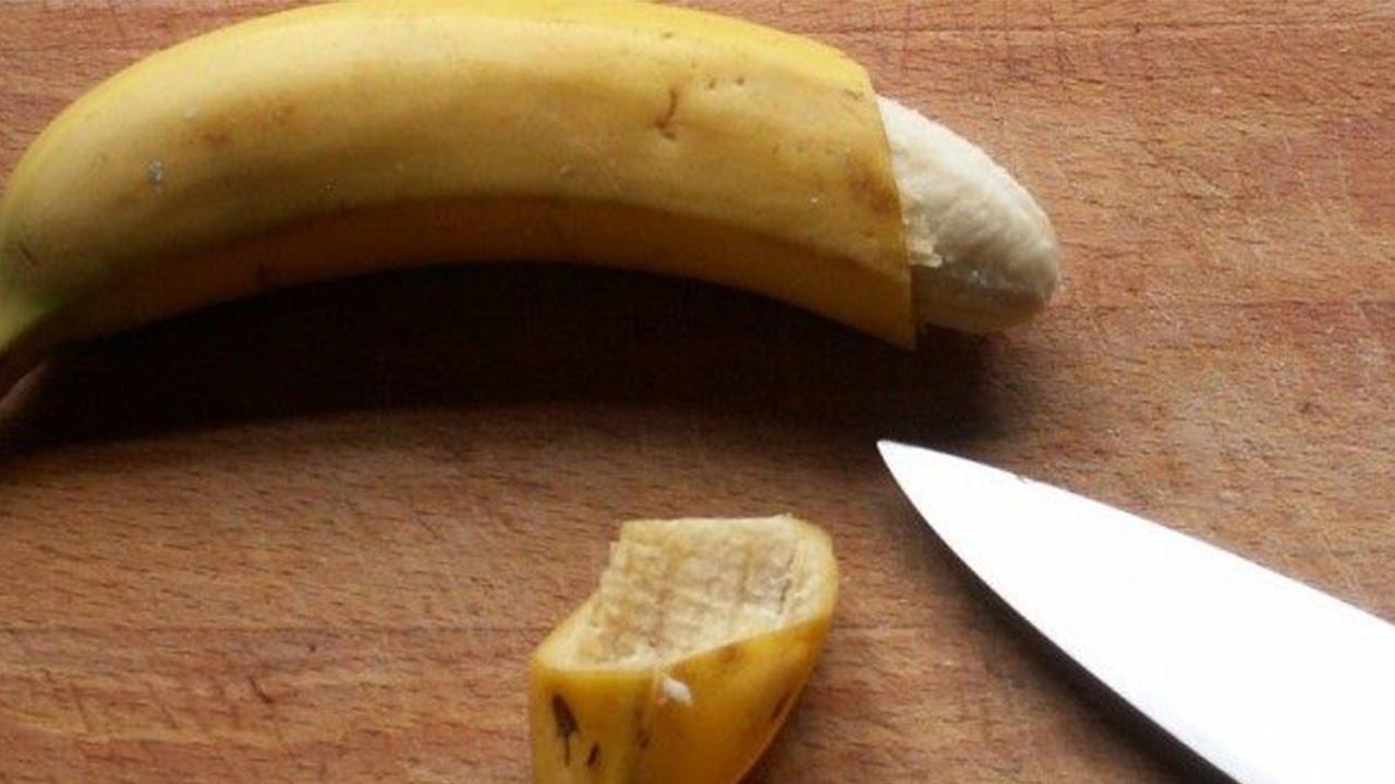 Các câu hỏi liên quan đến cắt bao quy đầu ở nam giới