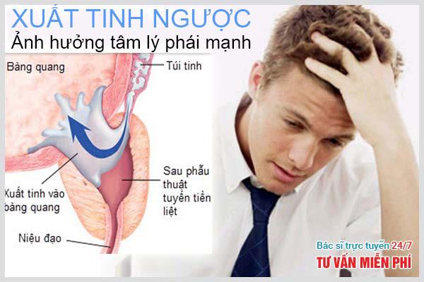 Xuất tinh ngược ở nam giới gây nên vô sinh